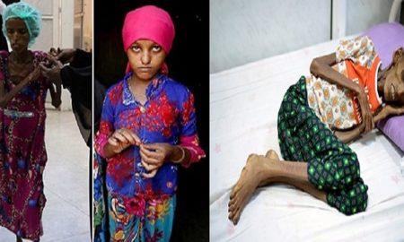 18-year-old Saida Ahmad Baghili looks like a 80 year old woman cover